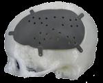 titanium cranial plate metal 3d printed